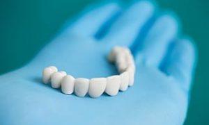 dental-implants-img