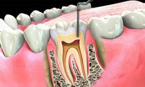 dental-root-canal