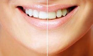 dental-white-filling