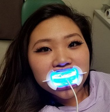 glosmile-teeth-whitening
